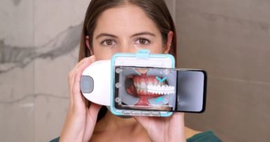 The Remote Dental Monitoring System – A Convenience for Patients & Orthodontists